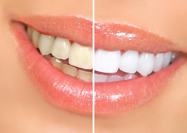 Dental Serenity, whiter teeth