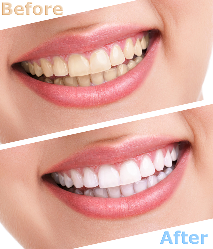 Dental Serenity, bleaching teeth treatment
