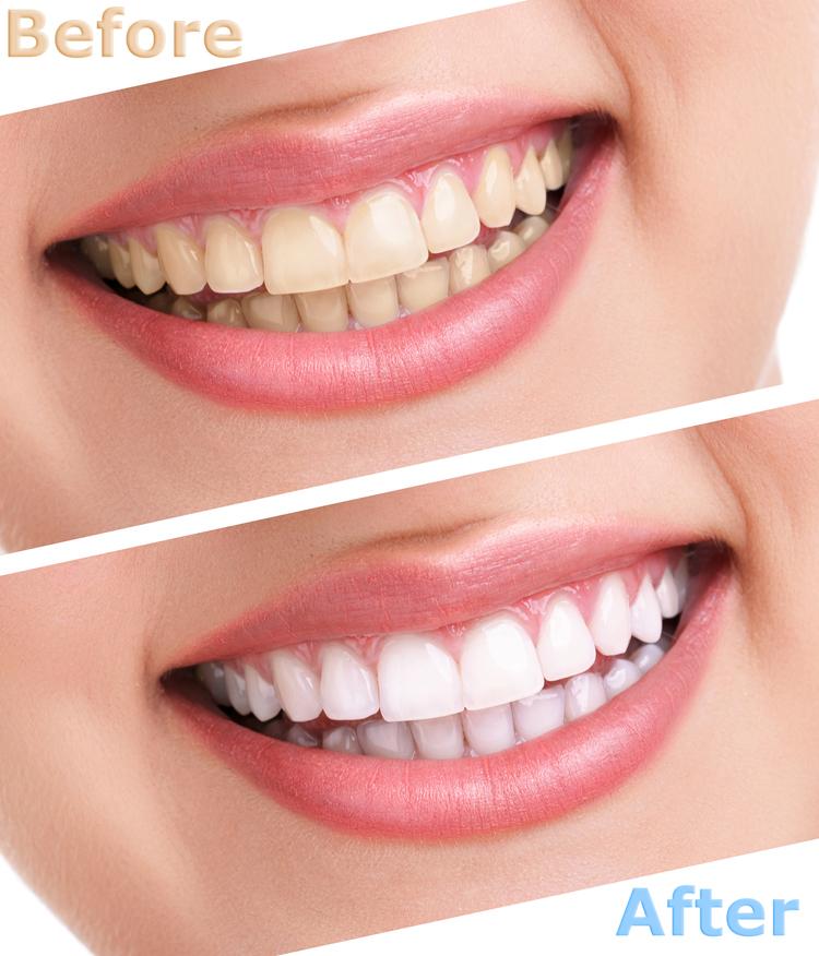 Dental Serenity, bleaching teeth treatment