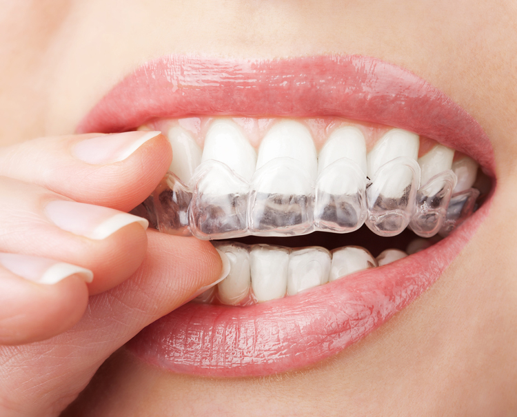 Dental Serenity, whitening tray