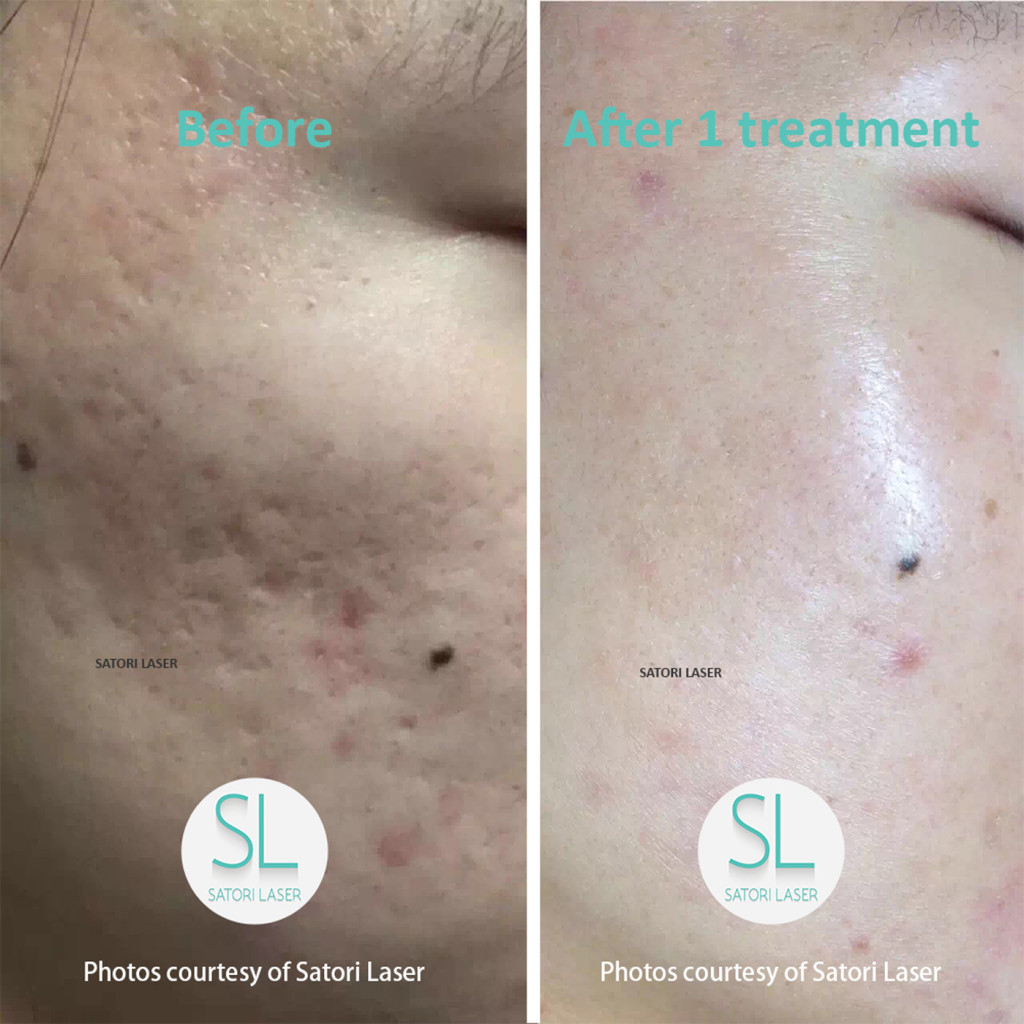 Satori Laser, Before and After